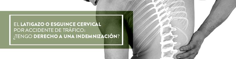 Tras un latigazo o esguince cervical por accidente de tráfico: ¿tengo derecho a indemnización?